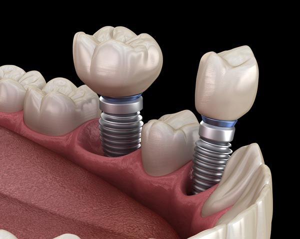 Dental Implants Versus Bridge To Replace A Missing Tooth