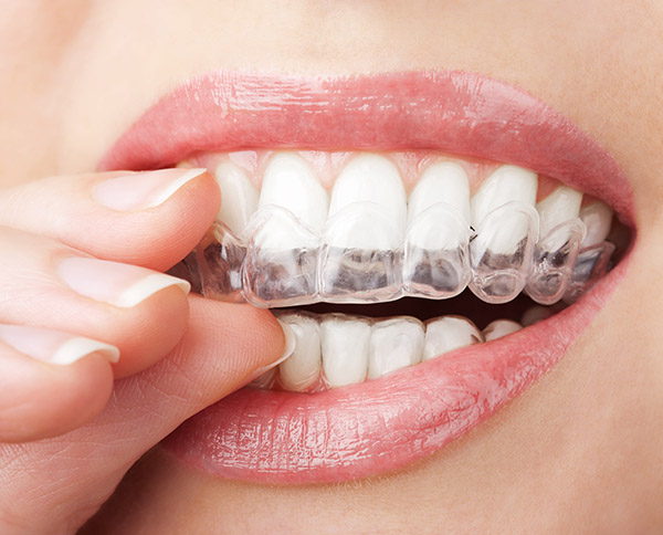 Invisalign® Dentist In Columbus
